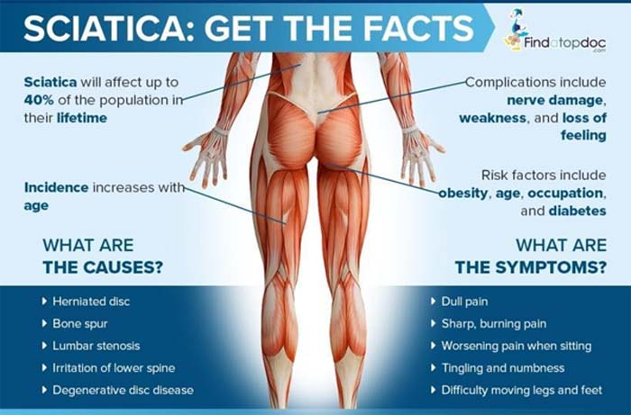Facts About Sciatica