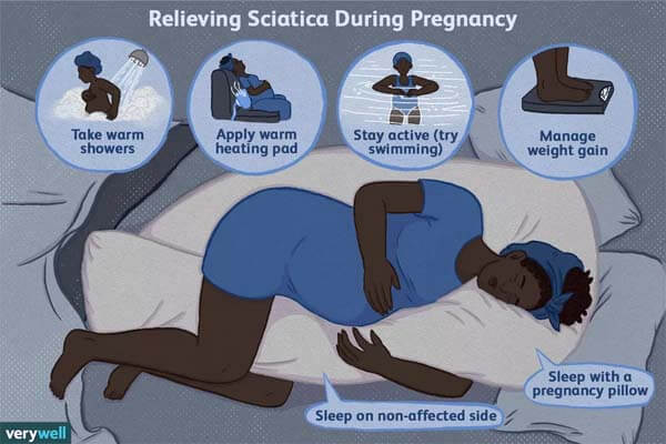 How to Sleep with Sciatica While Pregnant