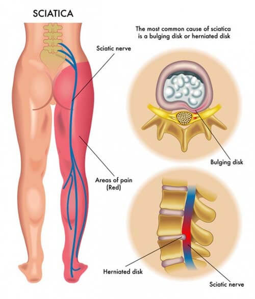 Leading Causes Sciatica