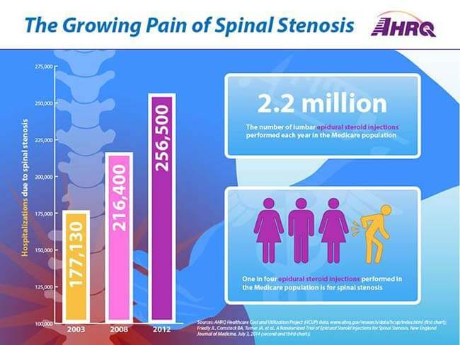 Growing Pain of Spinal Stenosis