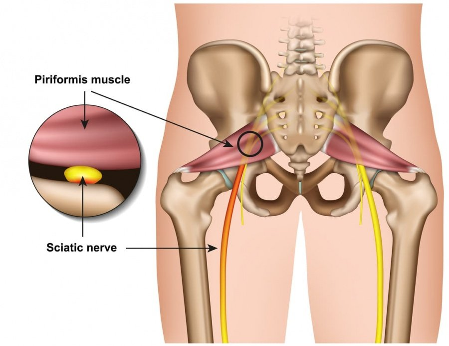 Understanding Piriformis Syndrome and How It Can Affect Sleep